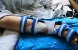 女孩玩网红蹦床10分钟,右腿骨折植入3颗钢钉!